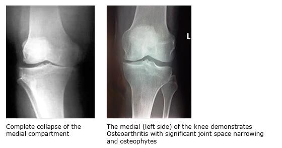 High Tibial Osteotomy Surgery Cape Town   Dr Richard von Bormann